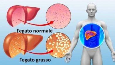 fegato-sano-e-fegato-grasso-500x282