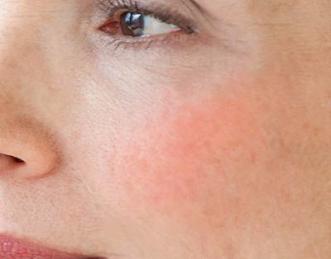 skin-rash-400x400